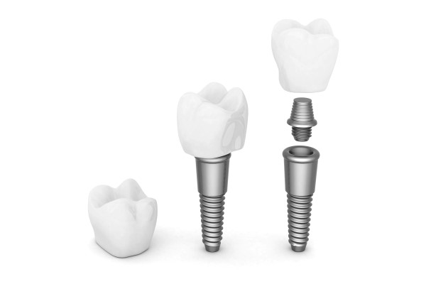 Dental Implant Restoration  How Is A Dental Crown Attached To An Implant?