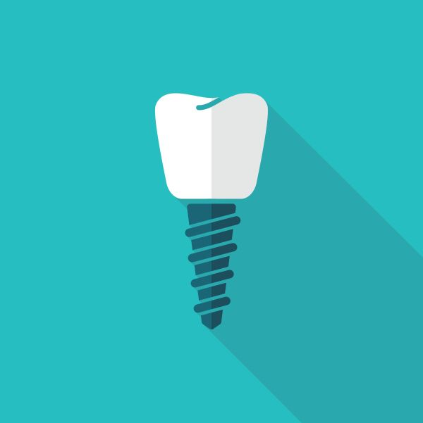 Crown Placement On Dental Implants