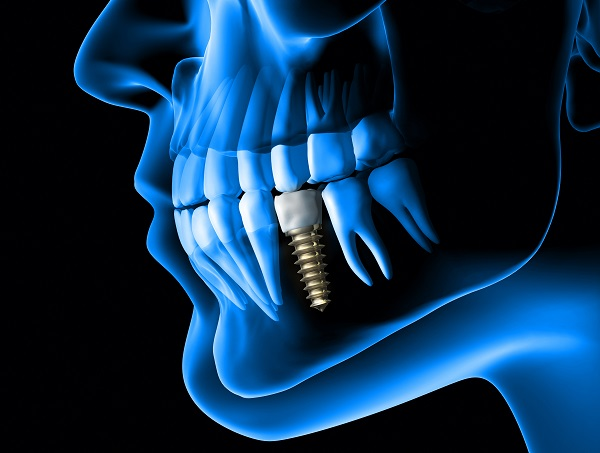 dental implant restoration Saratoga Springs, NY