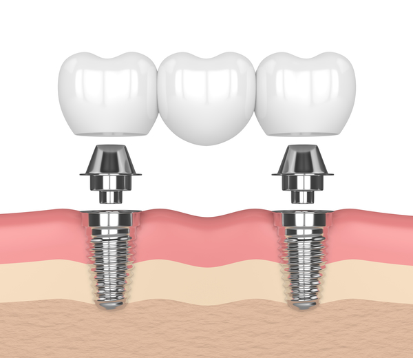 Dentures Supported By Dental Implants